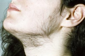 Hirsutism: Symptoms, causes, diagnosis, and treatment